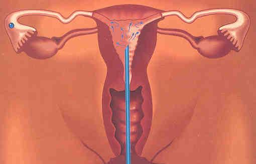 Hiệu quả của bơm tinh trùng vào buồng tử cung điều trị vô sinh chưa rõ nguyên nhân