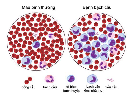 Tìm hiểu bệnh Ung thư Máu và biểu hiện khi bị bệnh