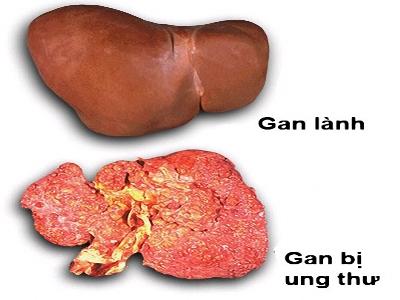 Bệnh Ung thư gan giai đoạn đầu có biểu hiện gì?