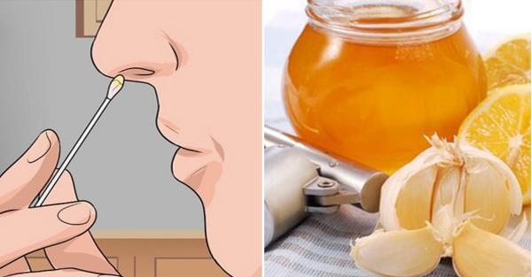 Mật ong có thể chữa viêm xoang