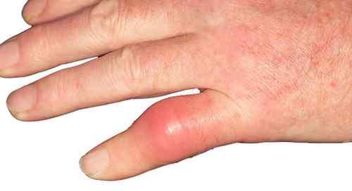 Gút ở khớp ngón tay