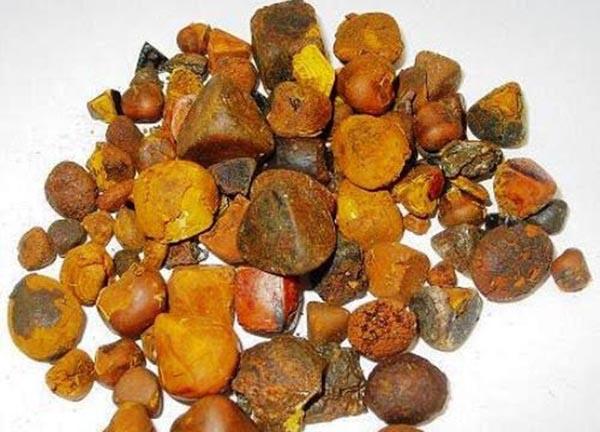 Loại sỏi mật này có giá đắt như vàng ròng, được nhiều người lùng mua với giá 32 triệu đồng/lạng