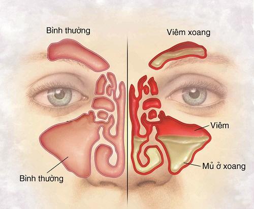 Bệnh kéo dài. Người bệnh có biểu hiện xương hàm và xương trán ấn thấy đau; thường chảy nước mũi có mủ và hôi, khứu giác giảm, nhức đầu thường xuyên. Phương pháp chữa là dưỡng âm, nhuận táo, thanh phế, giải độc. Dùng một trong các bài: