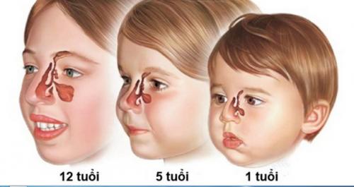 Hỏi đáp bệnh xoang ở trẻ: Trẻ em có bị viêm xoang?