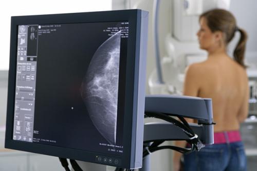 Người đang khỏe mạnh bình thường Có nên đi tầm soát tất cả bệnh ung thư?
