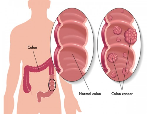 Uống cà phê có thể ngăn ung thư đại tràng