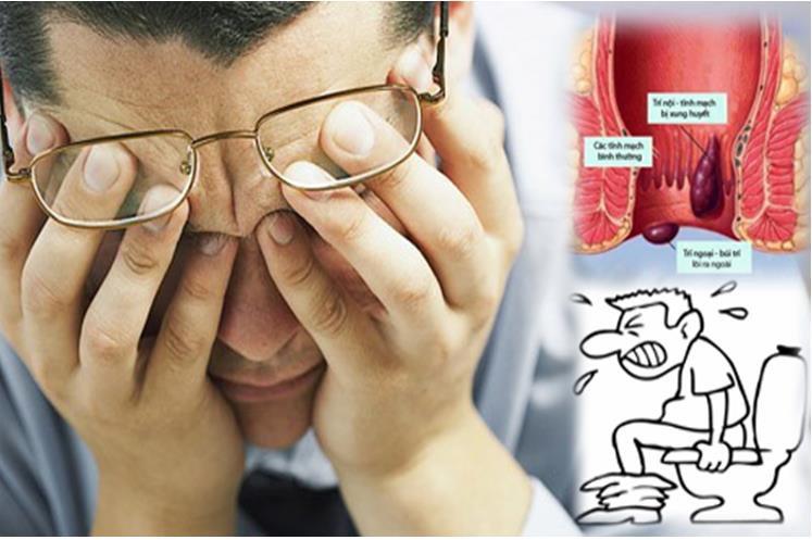 Bệnh trĩ và biến chứng thường gặp