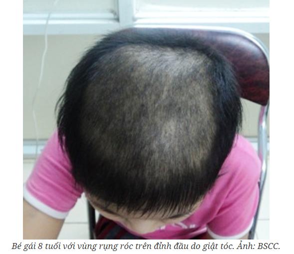 Trẻ hay giật tóc có phải mắc chứng rối loạn tâm lý?