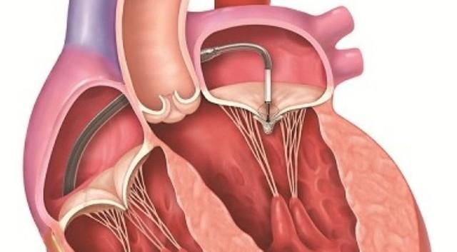 Khi nào phải thay van tim?