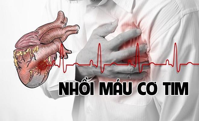 Biểu hiện nhồi máu cơ tim