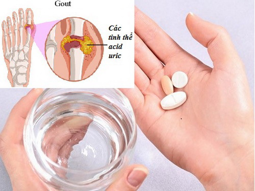 Thuốc trị gút và những lưu ý khi dùng thuốc trị gút