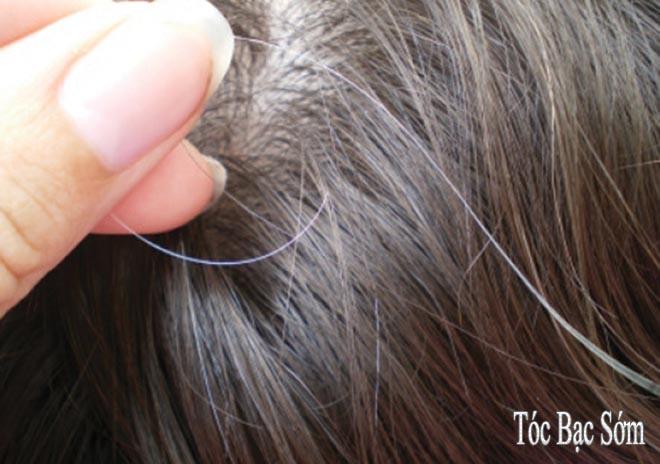 Bài thuốc đông y phòng ngừa và điều trị tóc bạc sớm