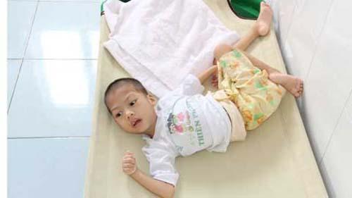 Có thể điều trị Đông Tây y kết hợp chữa chứng động kinh của trẻ em không?