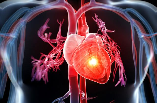 Ô nhiễm và bệnh tim mạch