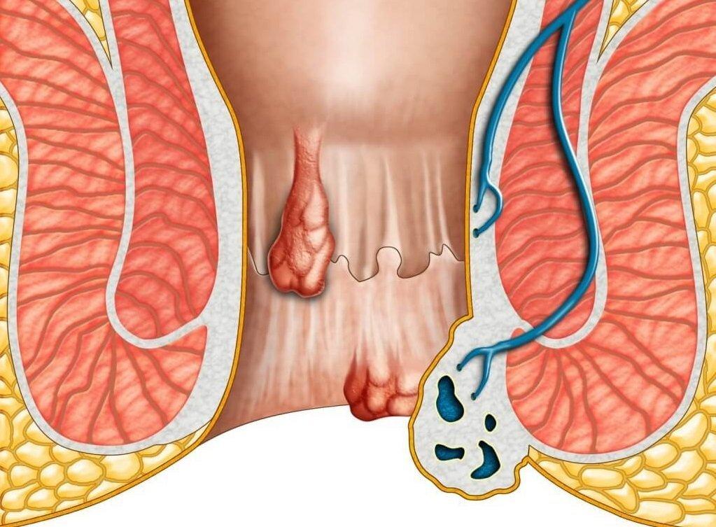 Bệnh trĩ: Dùng thuốc hay phẫu thuật?