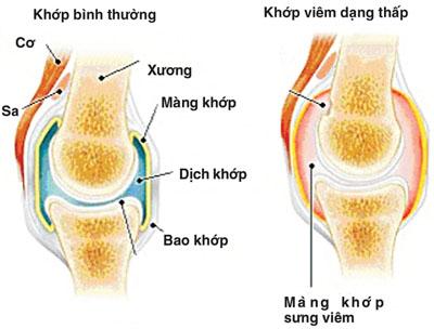 Bệnh viêm khớp dạng thấp và cách điều trị