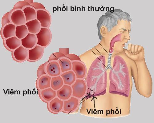 Các thuốc trị viêm phổi