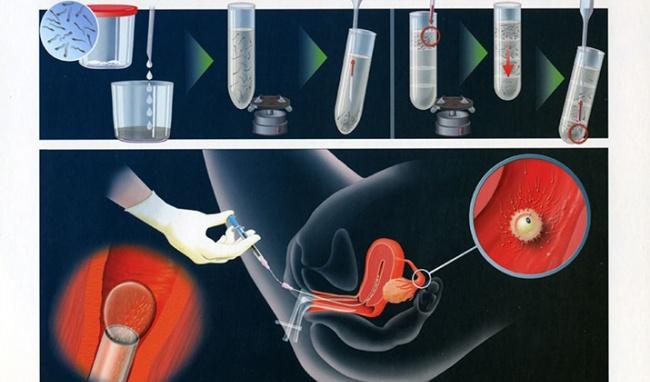 IUI - Tỷ lệ thành công của bơm tinh trùng vào buồng tử cung và một số yếu tố ảnh hưởng đến kết quả điều trị