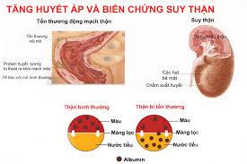 Tăng huyết áp có thể gây suy thận