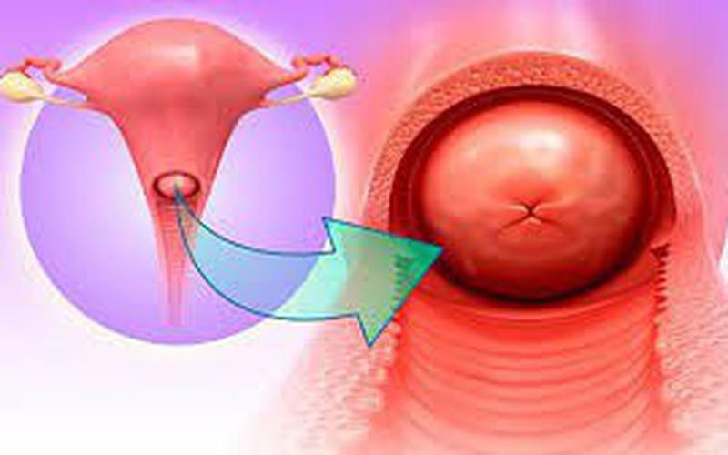 Bài thuốc chữa viêm cổ tử cung: Dược dục trị liệu viêm cổ tử cung