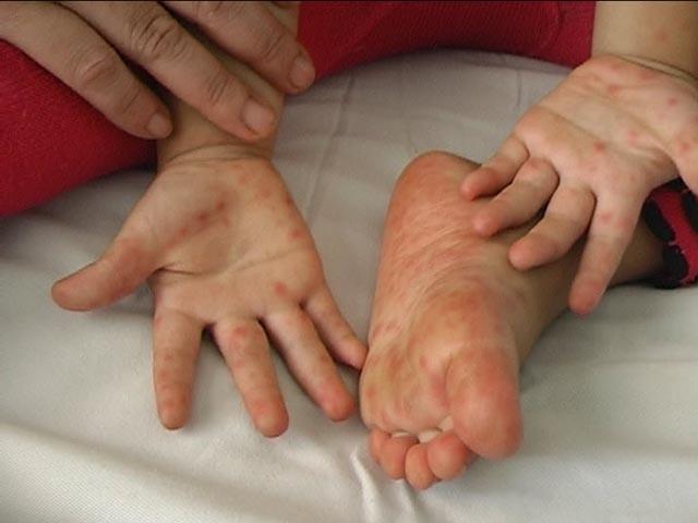 Bệnh chân tay miệng lây qua đường nào