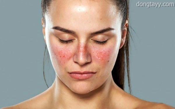 Bệnh Lupus ban đỏ có gây đau khớp?