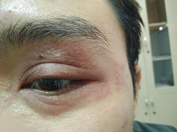 Bệnh Zona mắt