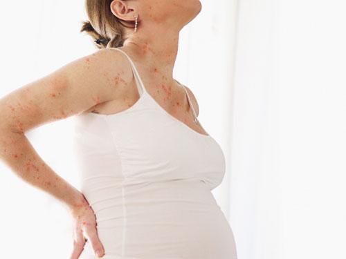 Bệnh thủy đậu ở phụ nữ mang thai