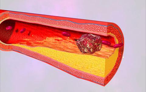 Bảo vệ mạch máu, giảm biến chứng tiểu đường