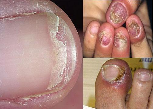 Nấm móng chân có lây không?