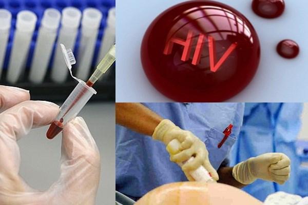 Máu HIV dính vết thương hở có lây?