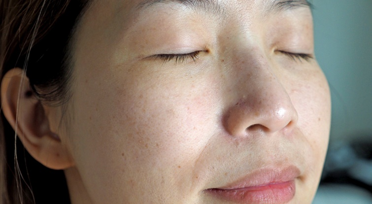 Những bài thuốc Nam đắp trị tàn nhang cực hiệu quả