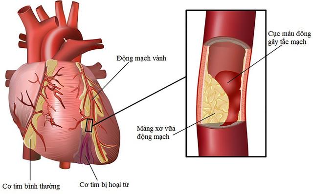 Không uống nước tiểu để chữa bệnh tim