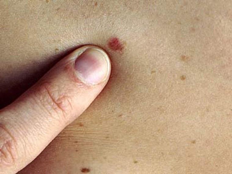 Mẹo nhìn nốt ruồi để biết ung thư hay không
