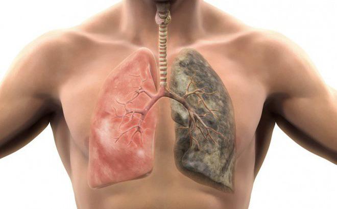 Bệnh phổi: Cảnh báo phổi mắc bệnh từ triệu chứng ho khạc đờm