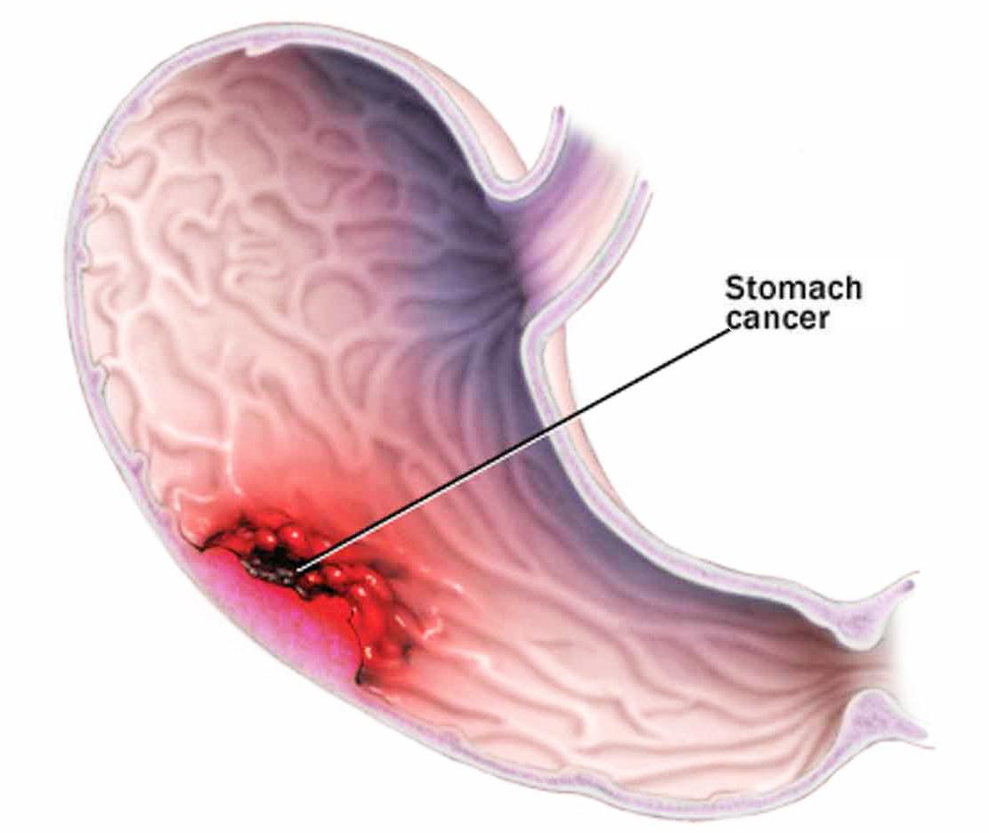 Những điều nên biết về ung thư dạ dày