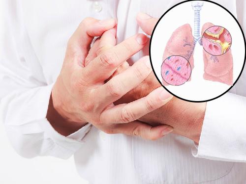 Triệu chứng viêm phế quản mạn tính