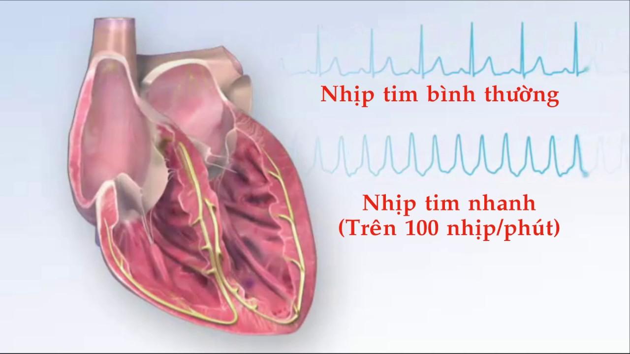 Bệnh tim đập nhanh - Nguyên nhân và cách khắc phục