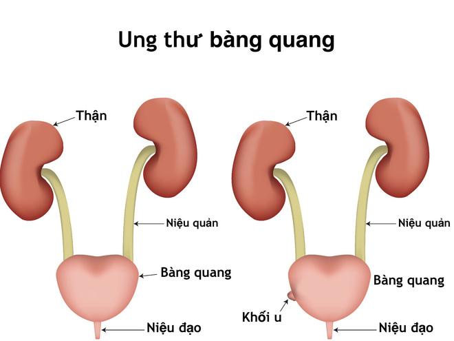 Thảo dược chữa ung thư Bàng Quang theo dân gian