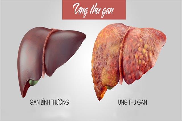 Phương pháp mới điều trị ung thư gan cho người Việt