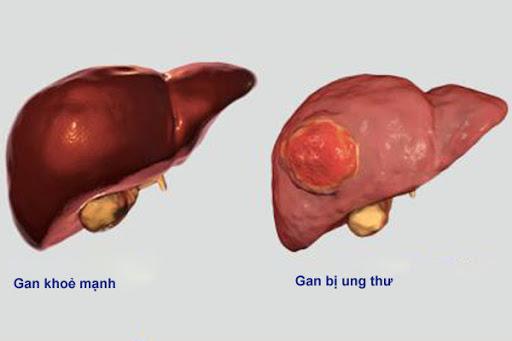 Ung thư gan khó chữa khỏi