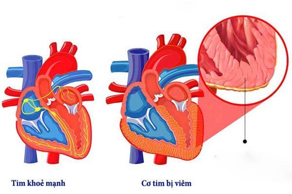 Hiểm họa từ viêm cơ tim