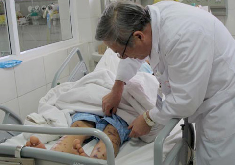Hà Nội đã có ca nhiễm não mô cầu đầu tiên nhập viện