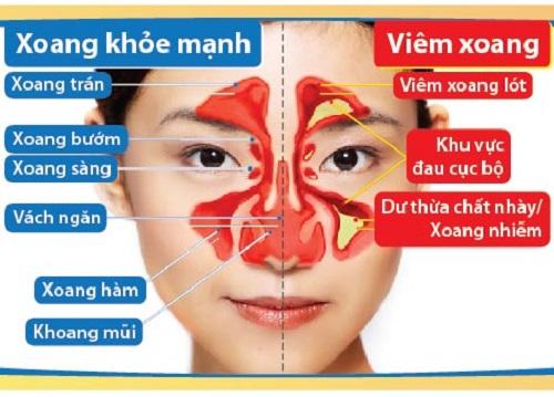 Cách chữa trị bệnh Viêm xoang