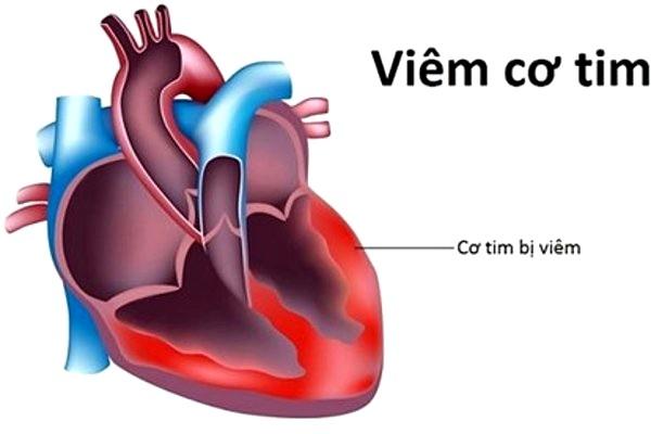 Bệnh cơ tim: Một bệnh lý nguy hiểm