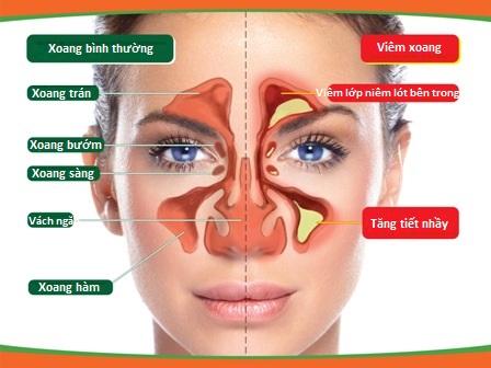 Viêm Mũi Xoang (Sinusitis)