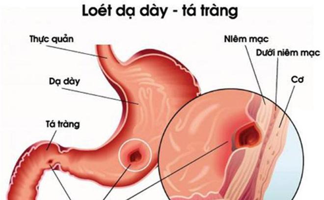 Dạ dày tá tràng